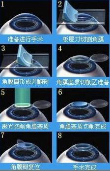 做激光手术恢复视力的后果